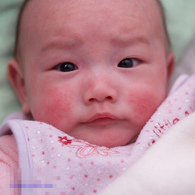 Bệnh rôm sảy ở trẻ sơ sinh có thể chữa bằng lá tía tô