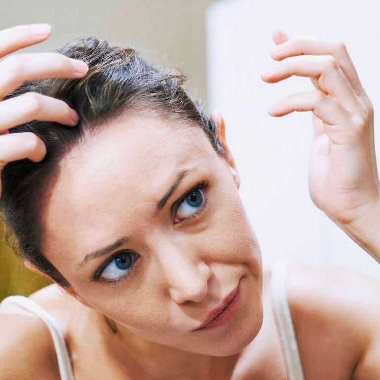Hoocmon có thể là nguyên nhân hói đầu