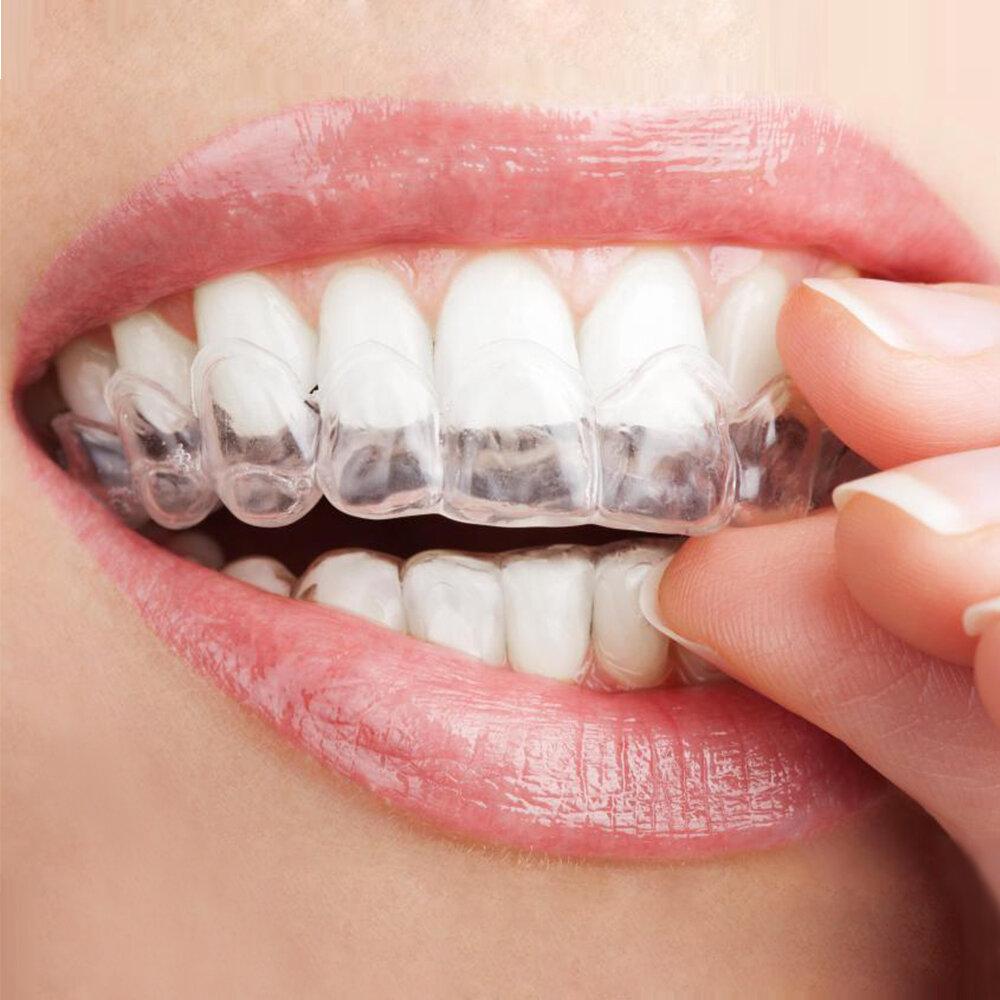 Sử dụng máng tẩy răng tại nhà rất tiện lợi và dễ dàng