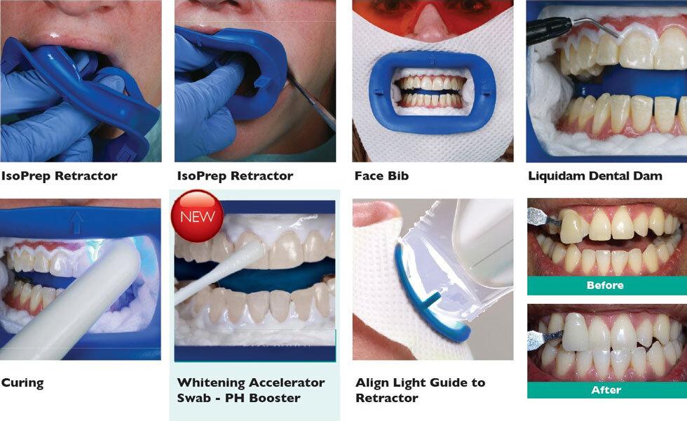 Tẩy trắng răng Laser Whitening mang lại hiệu quả cao