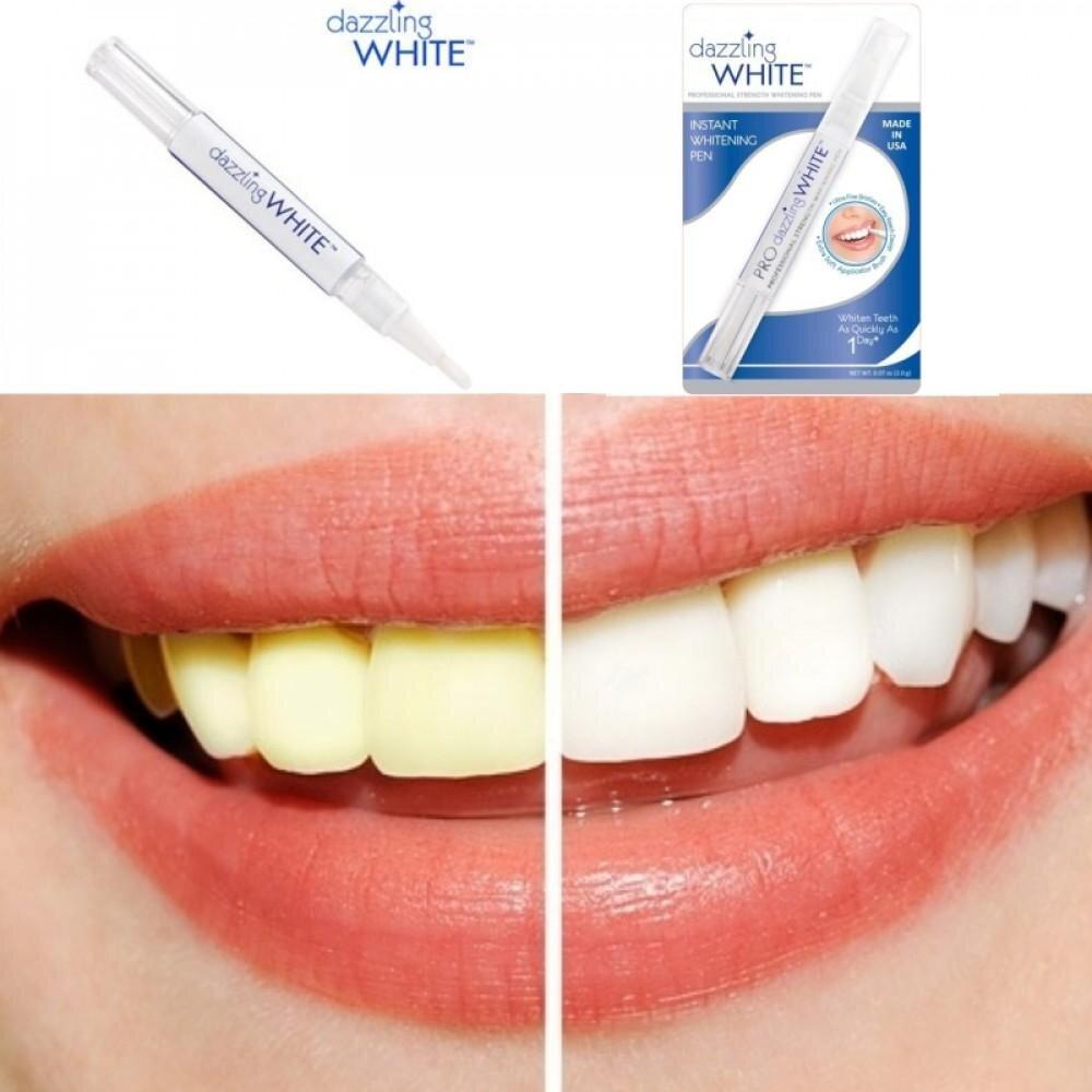 Hiệu quả sau 1 tuần sử dụng bút tẩy trắng răng Dazzling White