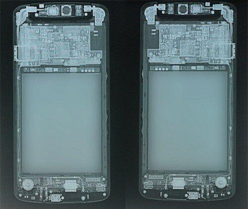 Quan trọng hơn, trước khi mổ N1, ê-kíp bác sĩ cần biết rõ tình trạng bên trong của N1 với màn chụp X-Quang mặt trước và sau sản phẩm.