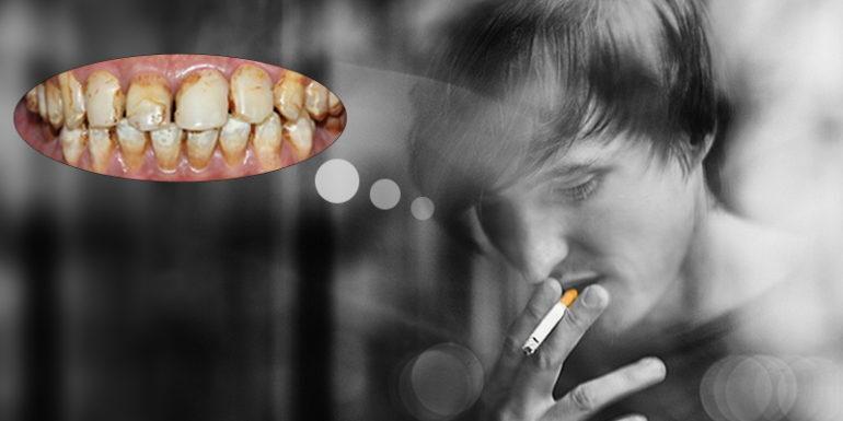 100% đàn ông hút thuốc răng đều vàng và có mùi hôi khó chịu ?