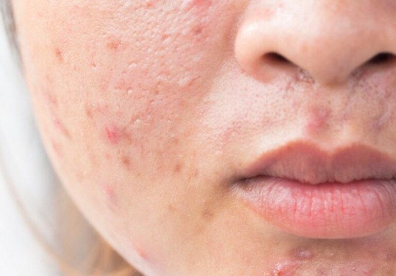 Tại sao nên sử dụng kem trị thâm mụn cho da?