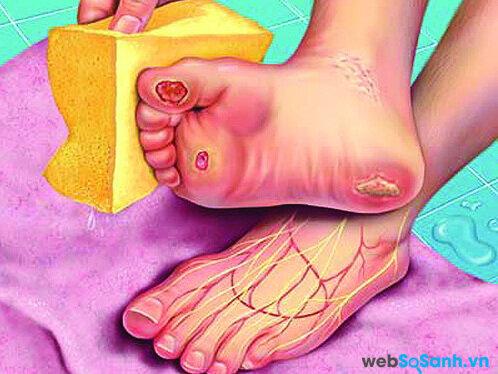 Chân liên tục mỏi, ngứa là một trong những biểu hiện của bệnh tiểu đường