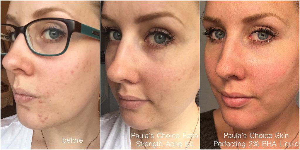 Sử dụng sản phẩm chăm sóc da của Paula's Choice bạn sẽ thấy làn da của mình được cải thiện rõ rệt