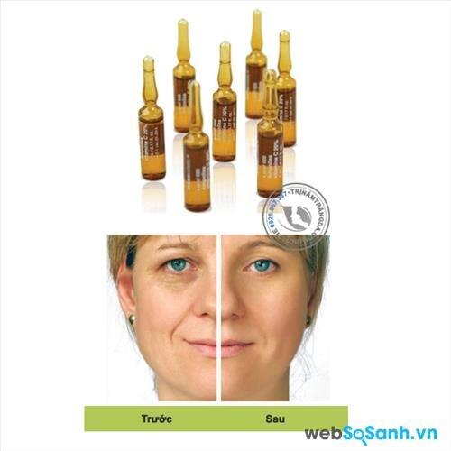 tinh chất serum chống nhăn