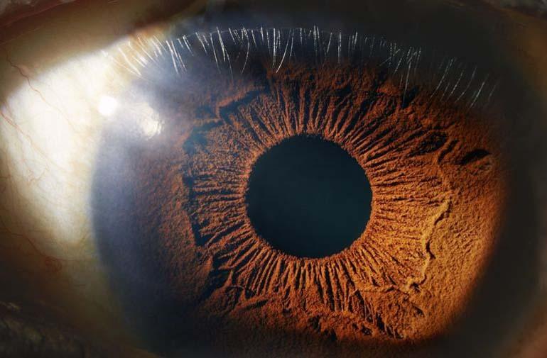 máy quét mống mắt