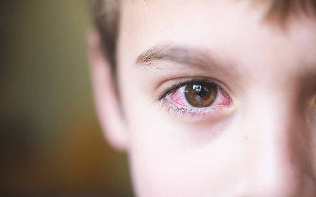 Bệnh khô mắt ở trẻ do thiếu vitamin A