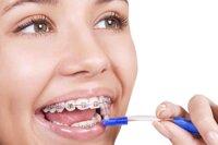 10 loại bàn chải đánh răng cho người niềng răng lông mềm mịn tốt nhất