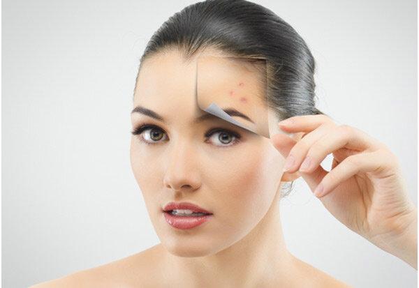 10 phương pháp giúp ngăn ngừa hiệu quả sự hình thành của mụn