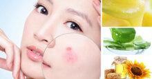 3 cách đắp mặt nạ sữa ong chúa trị mụn cho làn da chị em láng mịn