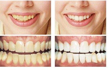 3 cách làm trằng răng hiệu quả với nguyên liệu tự nhiên