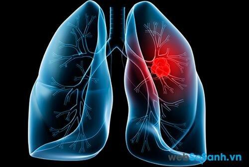 3 căn bệnh ung thư ở phụ nữ nguy hiểm không kém ung thư vú