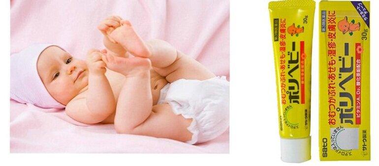 Có nên mua kem chống hăm của Nhật cho bé hay không?