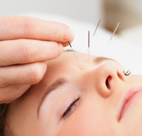 6 cách chữa bệnh đau đầu không cần thuốc
