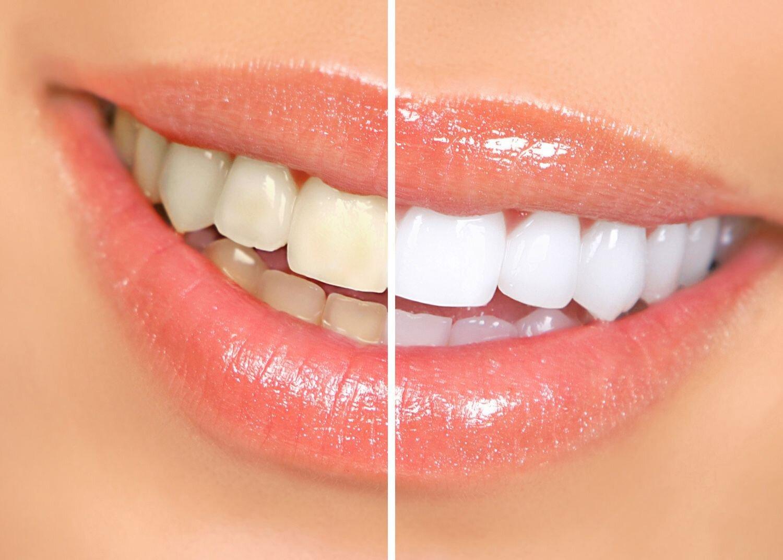 Bảng giá dịch vụ tẩy trắng răng cập nhật 9/2015