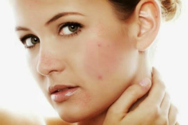 Nếu có dấu hiệu dị ứng da như nổi mụn, mẩn ngứa, kích ứng... thì hãy dừng ngay loại mỹ phẩm mới đang dùng