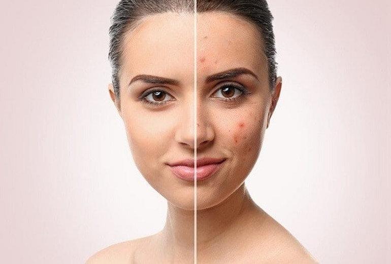 Nghiên cứu thương hiệu khi chọn kem dưỡng da trị mụn