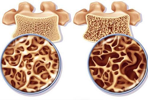 Dấu hiệu chứng tỏ cơ thể bạn đang bị thiếu hụt canxi