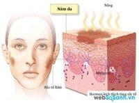Nguyên nhân và cách trị tận gốc nám da, tàn nhang