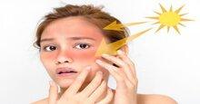 Những tác dụng và cách chọn kem chống nắng cho da mụn