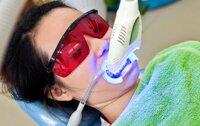 Review công nghệ tẩy trắng răng Bleachbright có ê buốt không, chi phí?