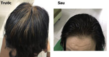 Tổng hợp những khúc mắc của người tiêu dùng về bonihair chữa bạc tóc và giải đáp