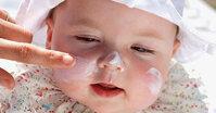 Top 13 kem chống nẻ dưỡng ẩm da cho bé tốt nhất 2020