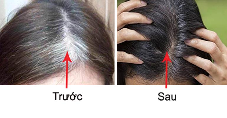 Bonihair chữa bạc tóc có tốt không